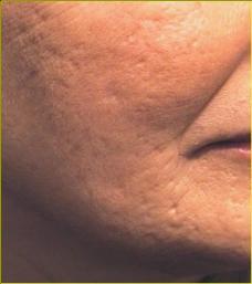 Шлифовка кожи. Пластическая хирургия, косметология, термолифтинг, лифтинг.