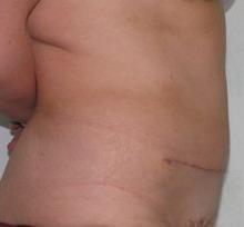 Косметология, абдоминопластика. Пластическая хирургия, косметология, термолифтинг, лифтинг.