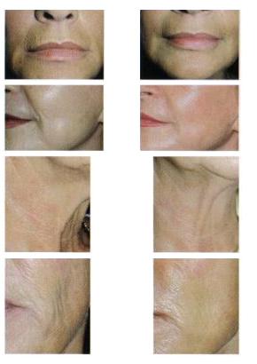 Пластическая хирургия, косметология, термолифтинг, лифтинг.