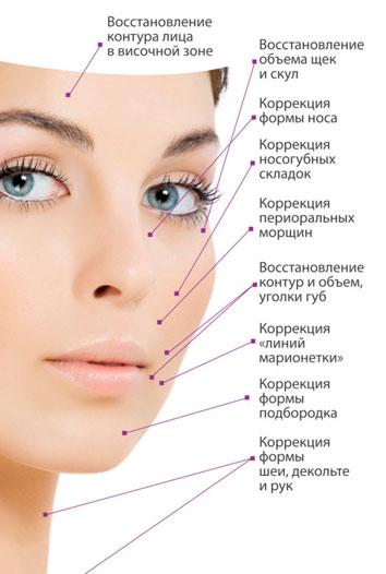 Контурная пластика в косметологии